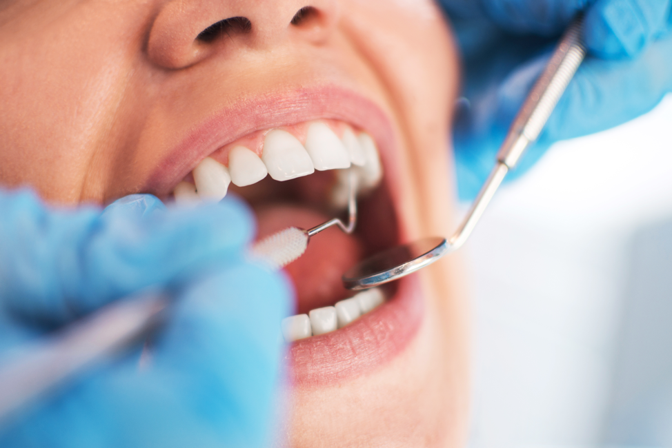 Orthodontic Care Offers Many Benefits To Your Dental Health